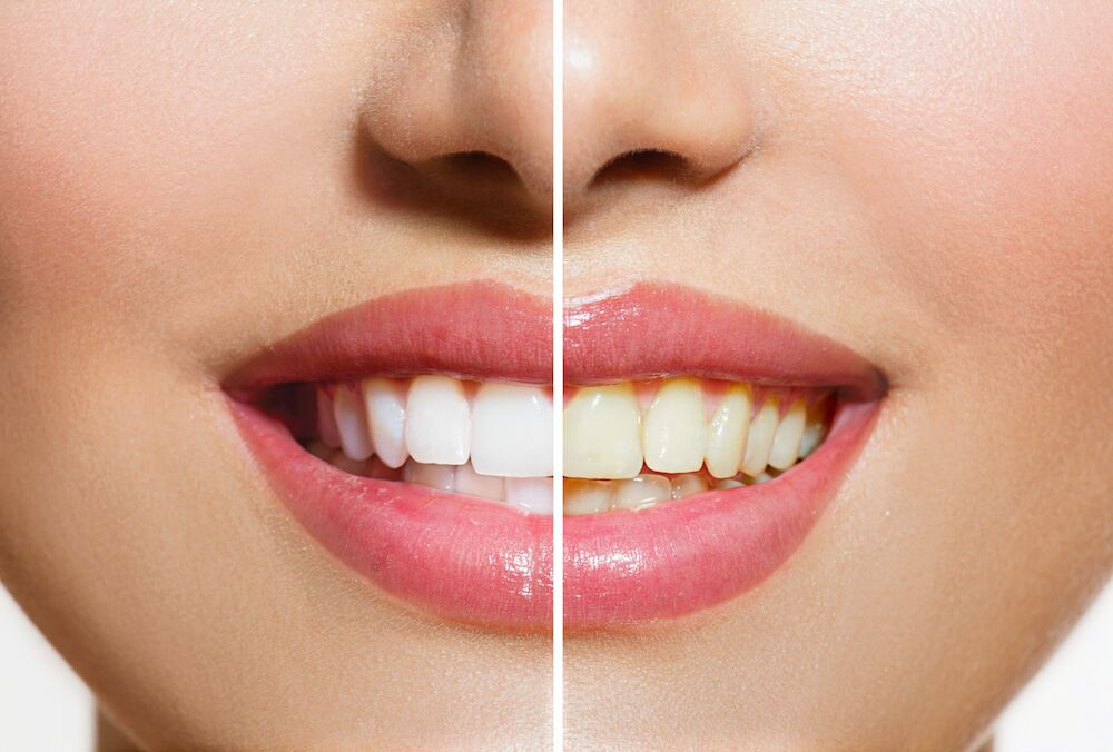 Huntersville NC Dentist | Stained Teeth